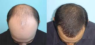 Latest Procedures and Strategies in Hair Transplantation Photo
