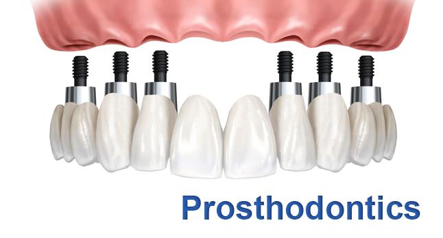 Prosthodontics Photo