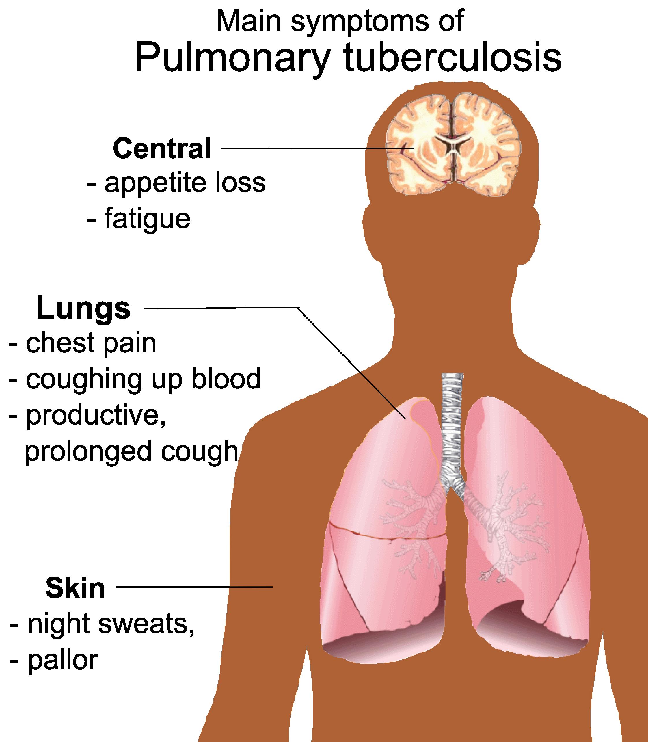 Mycobacterial symptoms  Photo