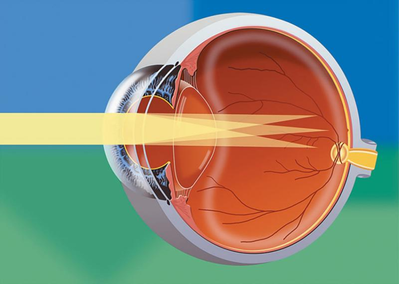 Refractive Disorders and Treatment Photo