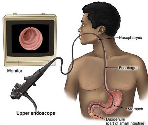 Bariatric Surgery- Endoscopy Photo
