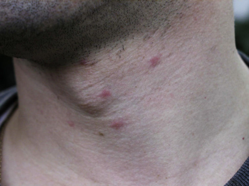Acute Dermatological Diseases Photo
