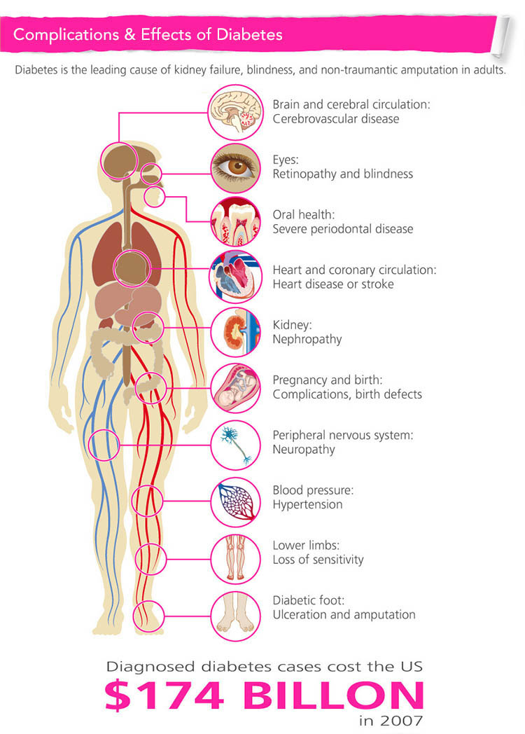 Diabetes & Associated Complications Photo