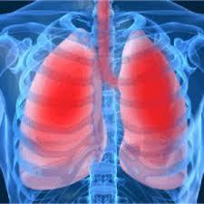 COPD Exacerbations Photo