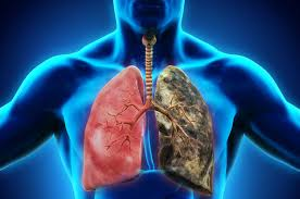 COPD Prevention and Management Photo