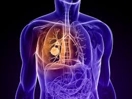 COPD Health Care Photo