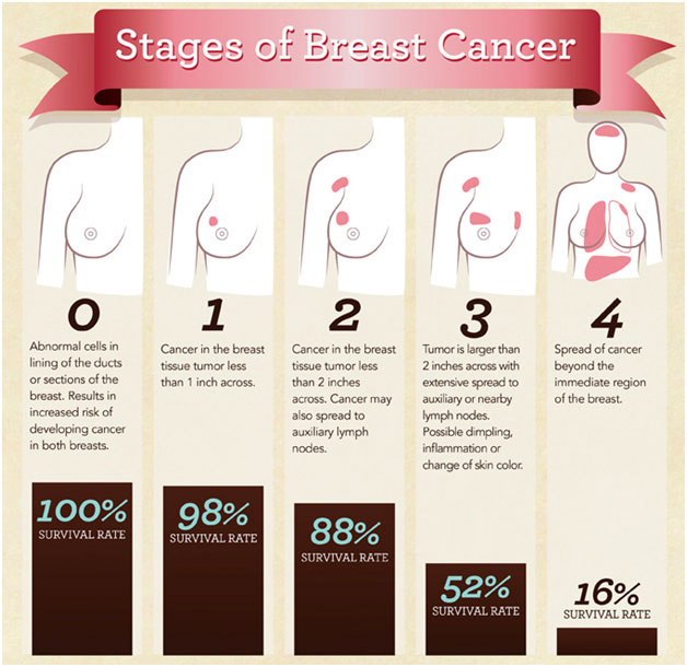 Staging of Breast Cancer  Photo