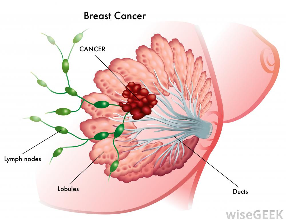Image result for image of breast cancer