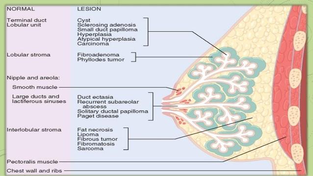Breast Pathology Photo