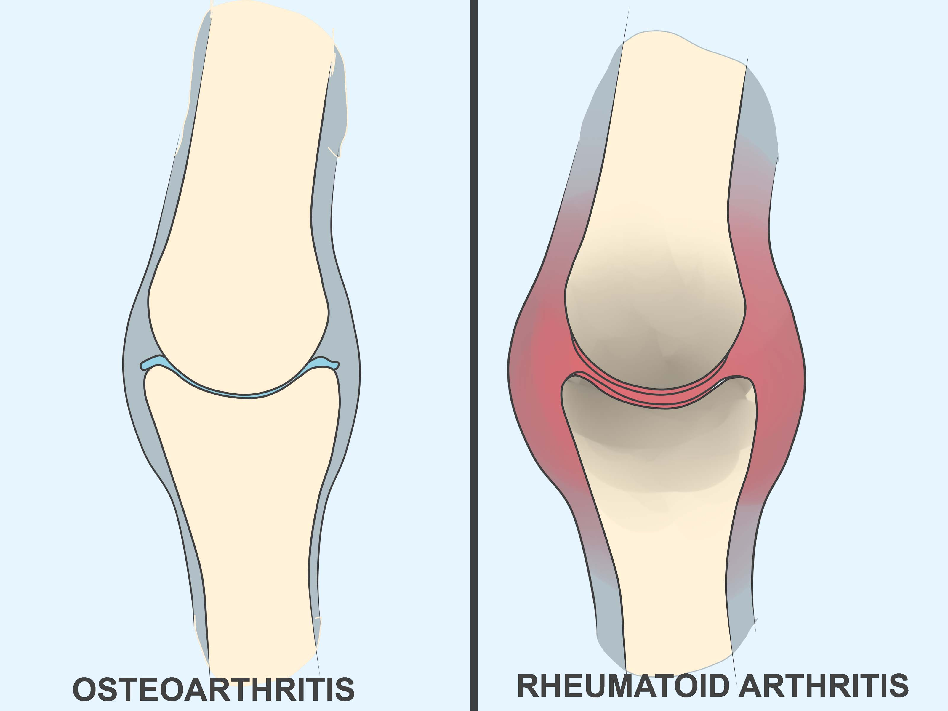Osteoarthritis and Rheumatoid arthritis Photo
