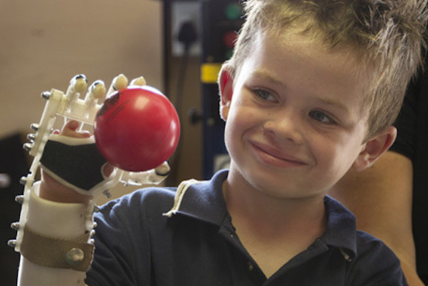 Medical Implants and prosthetics  Photo