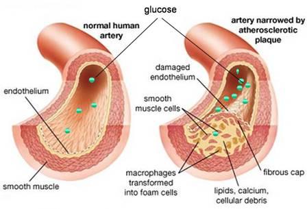 Think about it: Diabetes & Heart Disease Photo