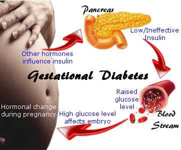 Gestational Diabetes Photo