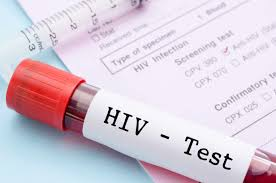 Advances in HIV tests Photo