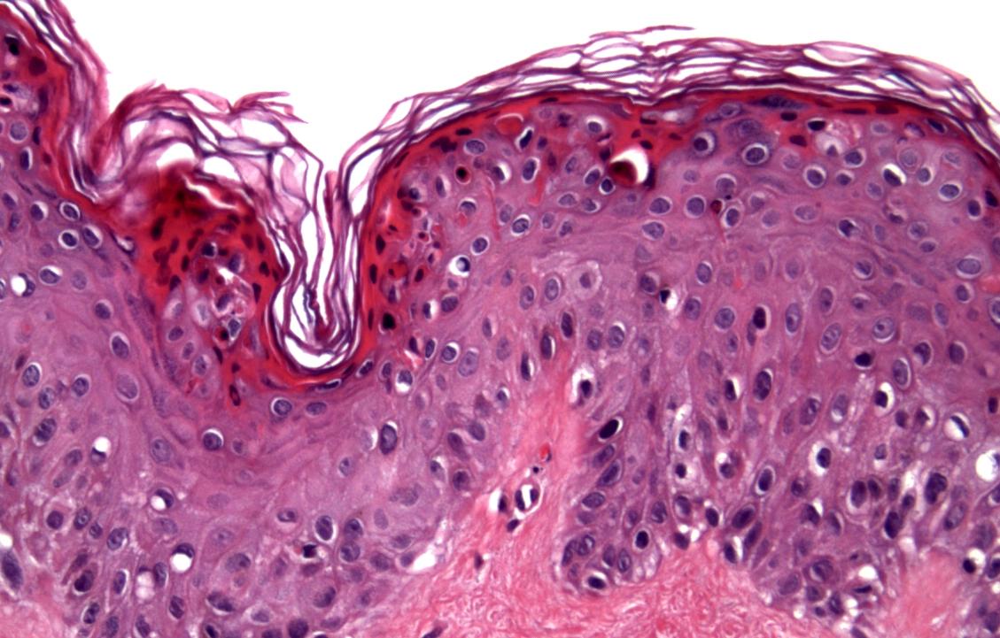 Dermatopathology Photo