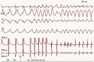 Women and Cardiac Arrhythmia Photo