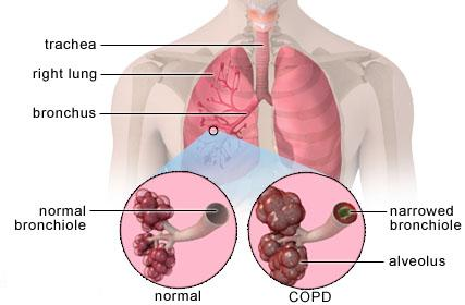 Chronic obstructive pulmonary disease (COPD) Photo