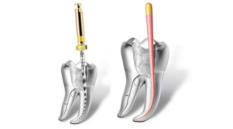 Endodontics Photo