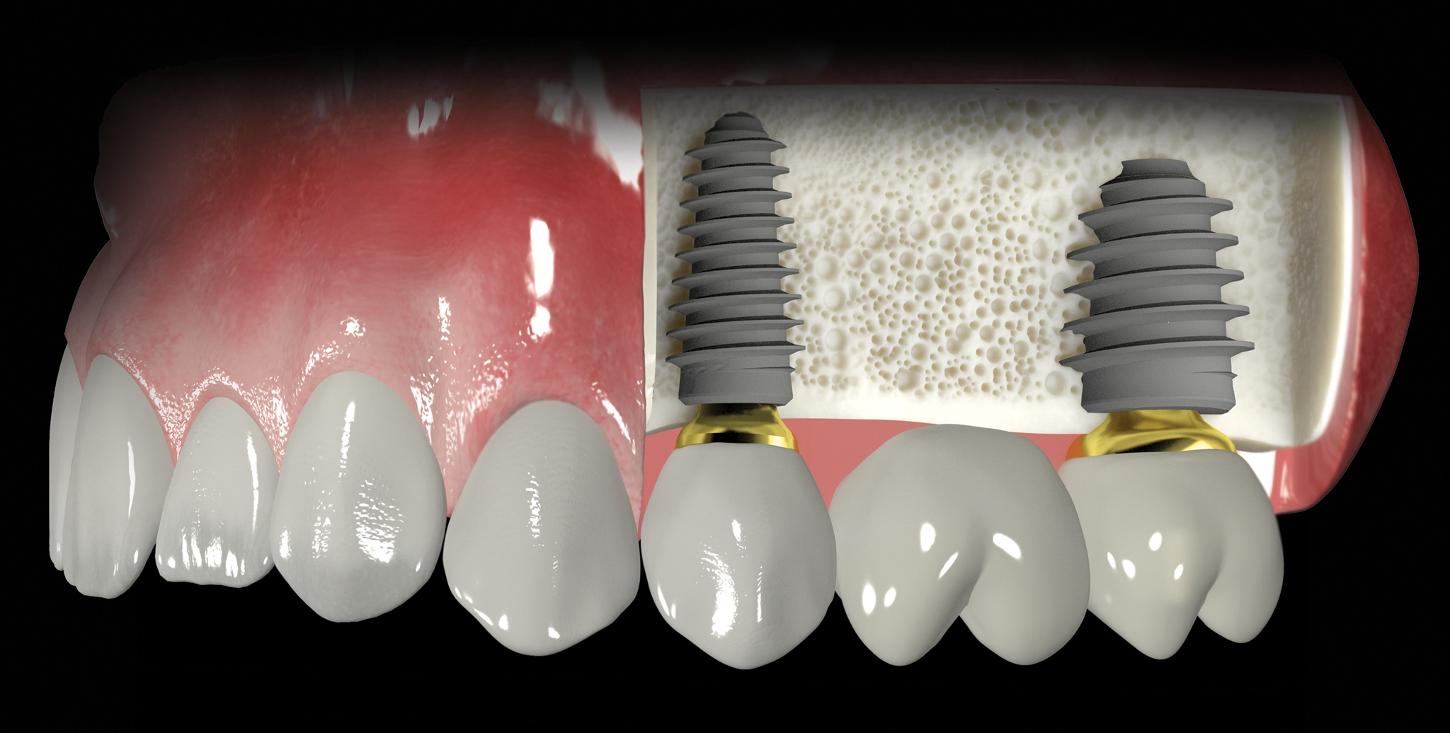 Oral Implantology Photo