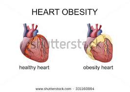 Cardiovascular Diabetology, Obesity and Stroke  Photo
