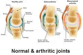 Types of Arthritis and their treatment Photo