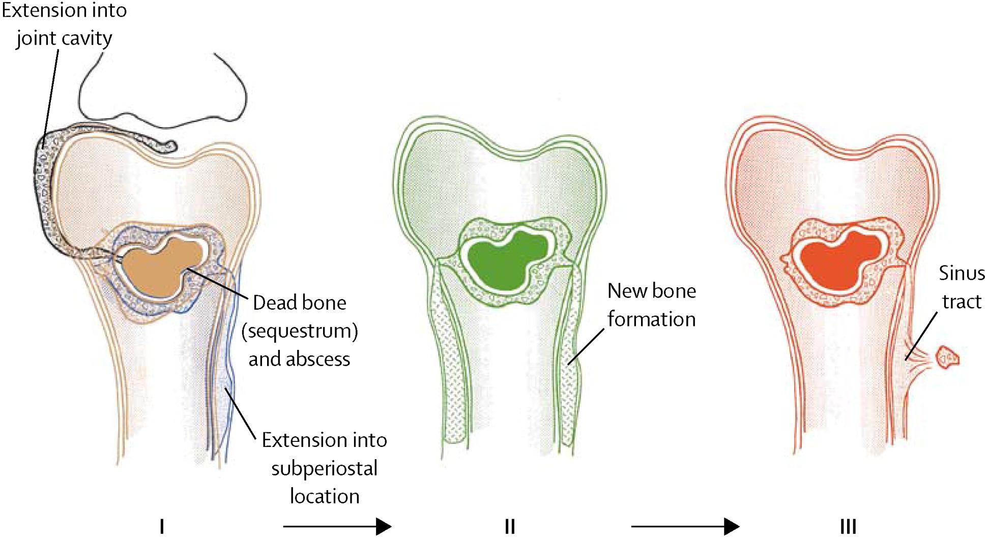 Diagnosis and treatment of Osteomyelitis Photo