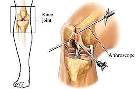 Advancements in Orthopedic Surgeries Photo