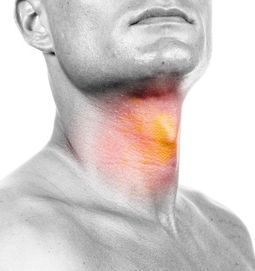 Esophageal Cancer Photo