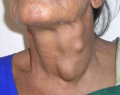 Head and Neck Cancer  Photo