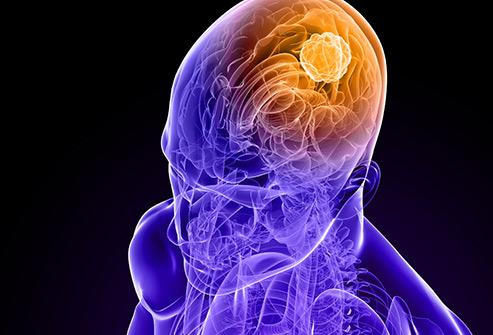 Brain Cancer Photo