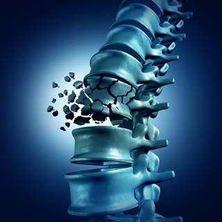 Osteoporosis in Spine and Spine Arthritis Photo