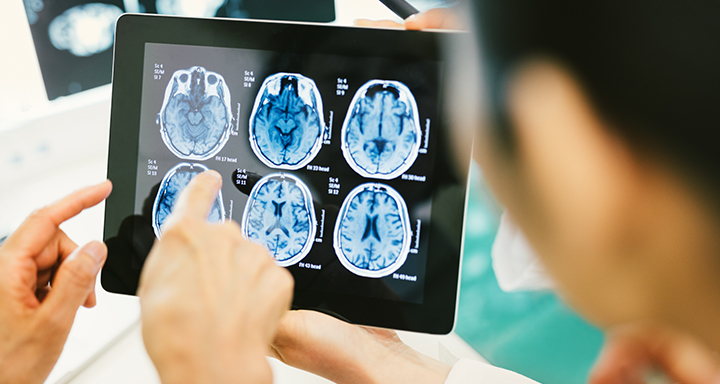 Neuro-Oncology and CNS Photo