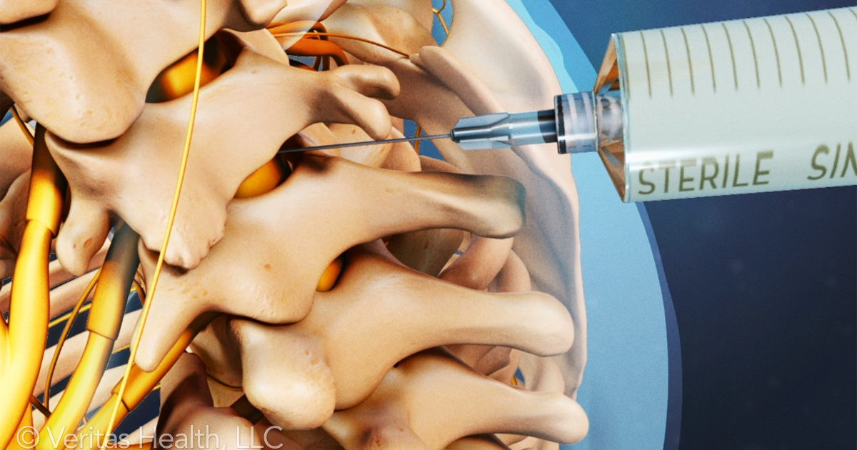 Spinal Injection Photo