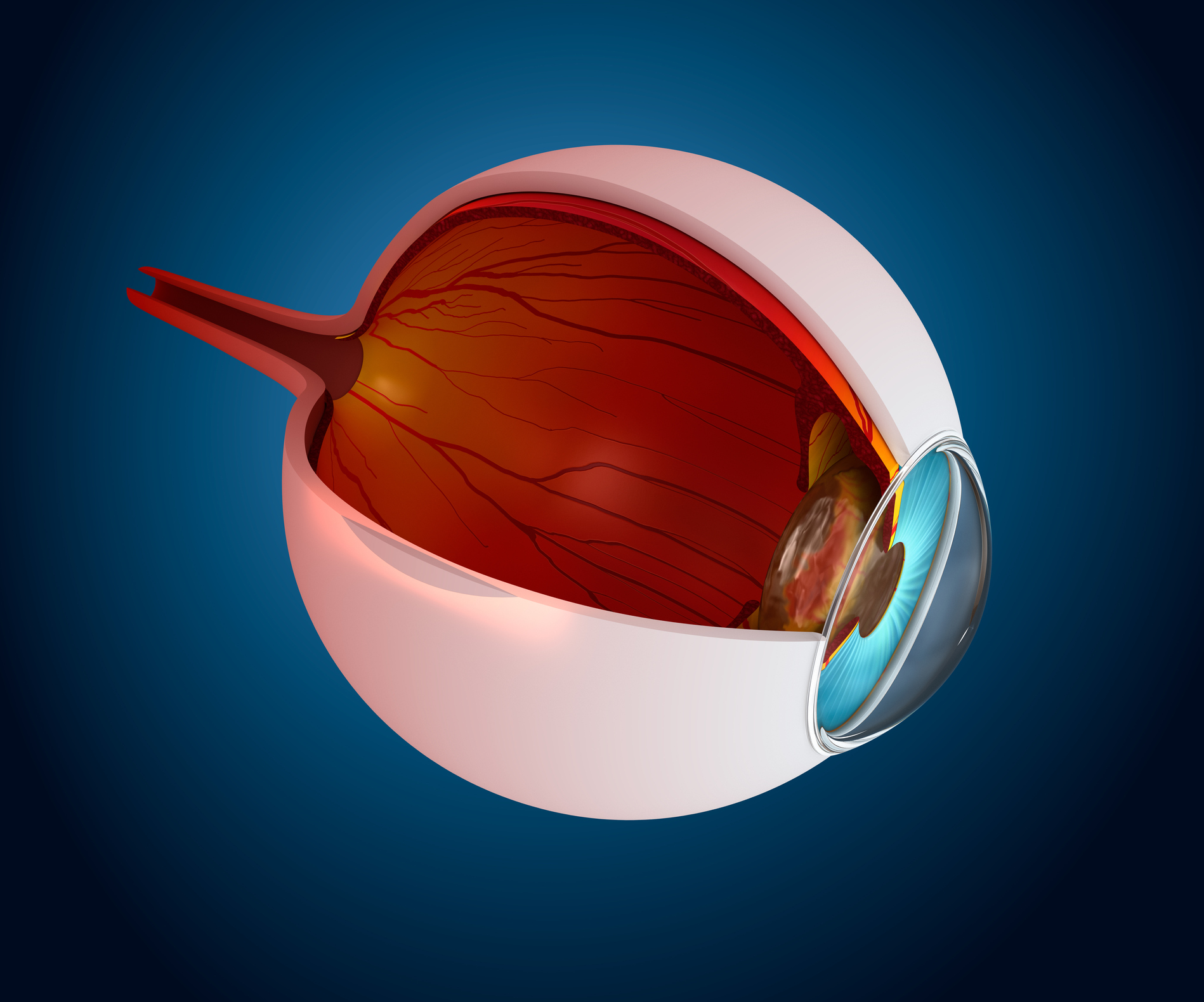 Cornea and Corneal Diseases Photo