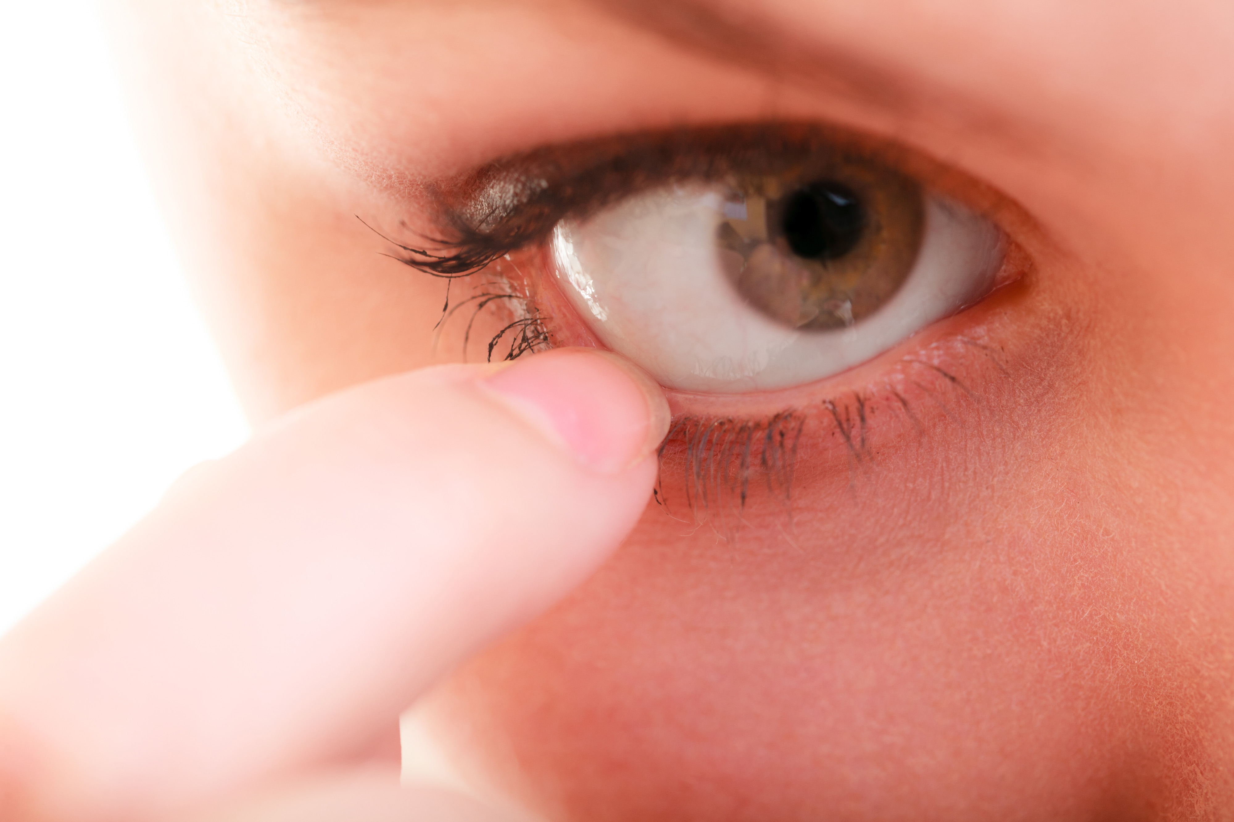 Dry eye Syndrome and Diseases Photo