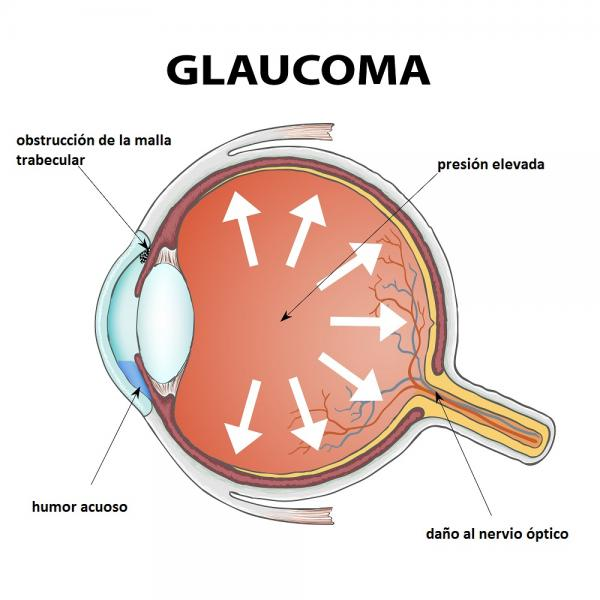 Glaucoma and Pediatric Glaucoma Photo