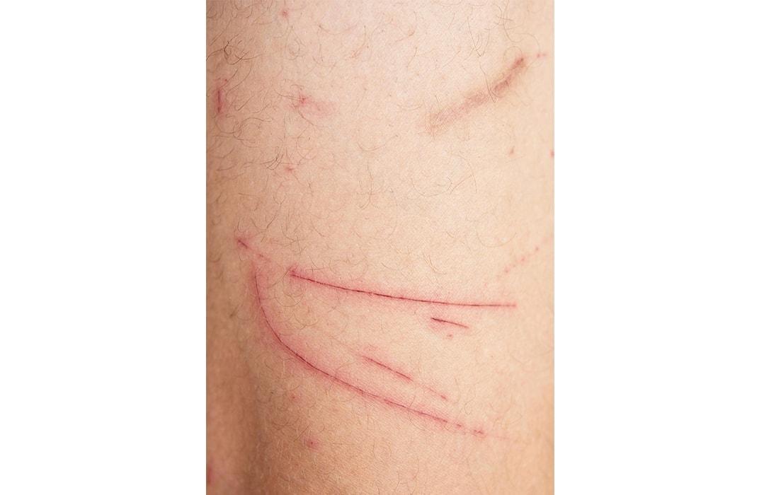 Skin & Wound Healing Photo