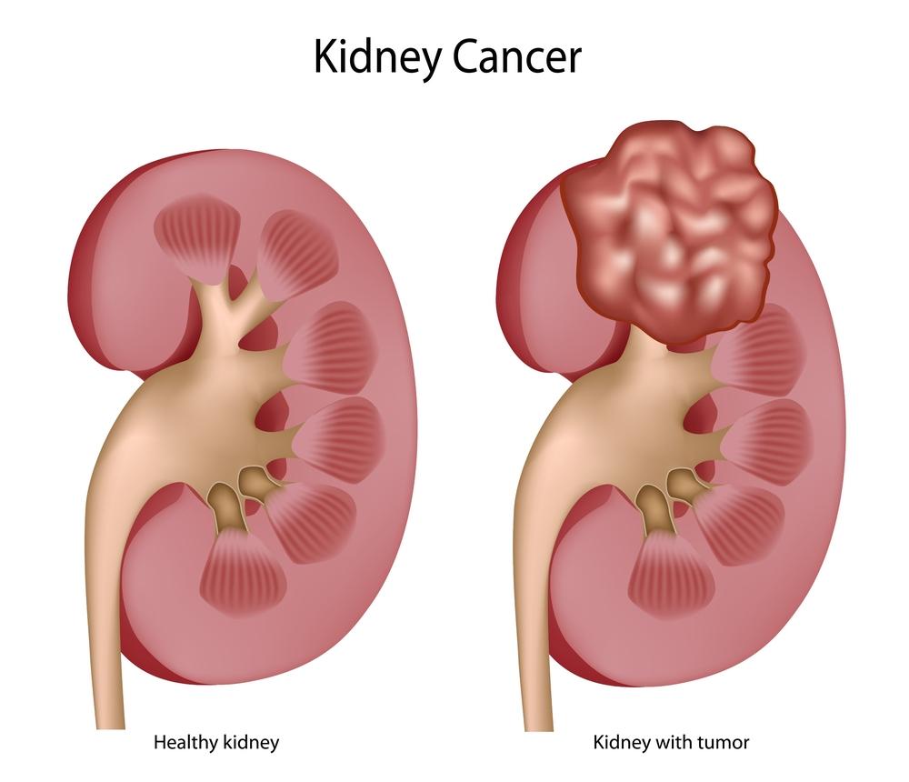 Kidney Cancer Photo