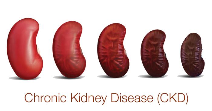 Chronic Kidney diseases Photo