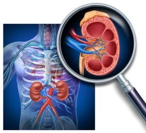 Clinical Nephrology Photo