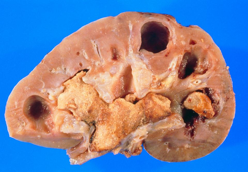 Kidney And Bladder stones Photo
