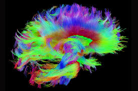 Neuroimaging Photo