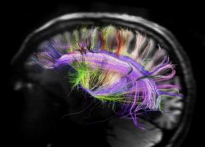 Behavioural Neurology Photo