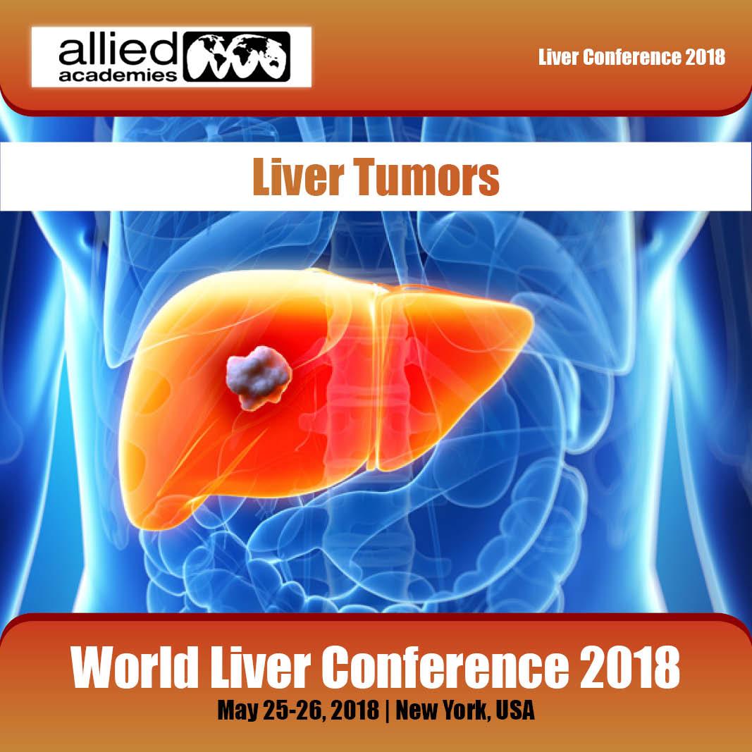 Liver Tumors Photo