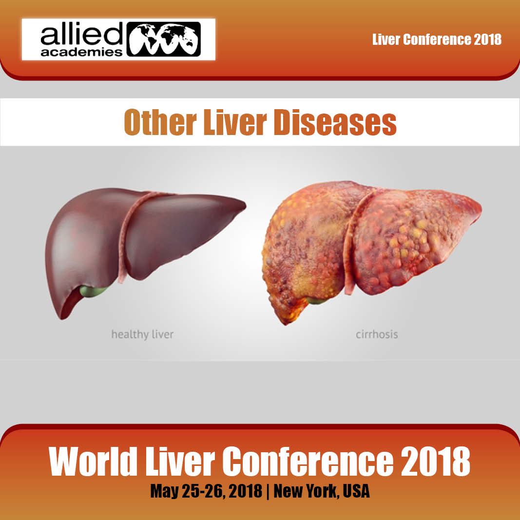 Other Liver Diseases Photo