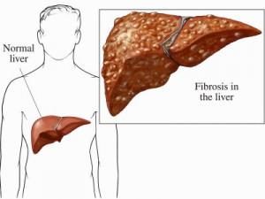 Liver fibrosis Photo