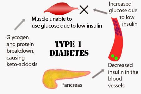 Type One Diabetes Pancreas Diagram Diy Wiring Diagrams