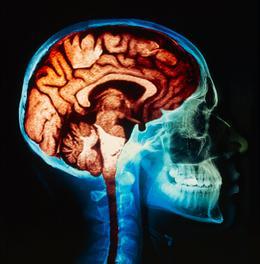 Psychopharmacology Photo