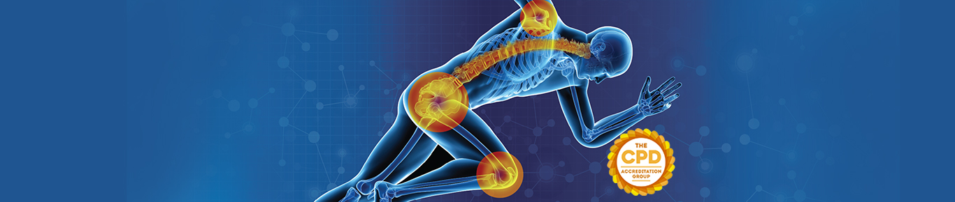 Orthopedics Conferences | Top Global Events | Osteoporosis