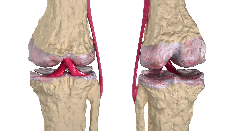 Osteoarthritis & Rheumatoid arthritis Photo